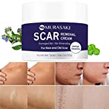 Scar cream,Scar removal,Scar treatment, Scar Removal Cream- stretch marks remover cream for All Skin Types, New and Old Scar-1 oz. / 30g